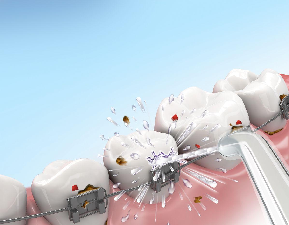 jak irygator Aquapick czyści zęby z aparatem ortodontycznym