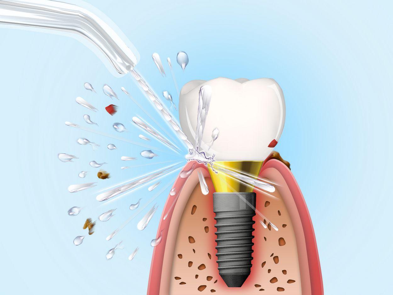 Ciśnienie wody czyści dziąsła wkoło implantów