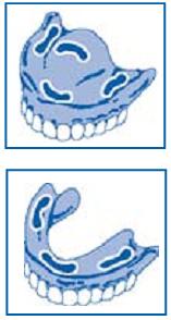 Instrukcja jak nakładać klej do mocowania protez Fittydent Super